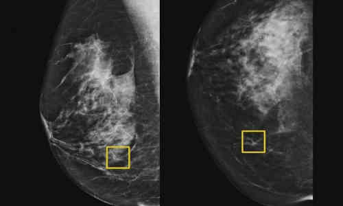 A yellow box indicates where the artificial intelligence system found cancer hiding inside breast tissue.