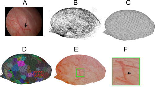 Images of 3D reconstruct bladders.
