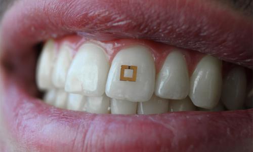 Miniaturized sensor mounted on a tooth