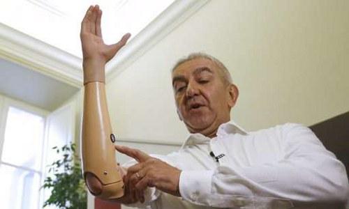 Marco Zambelli shows prosthetic hand