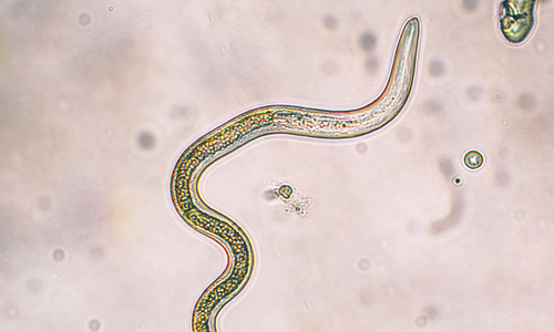 Microscopic image of a parasitic worm