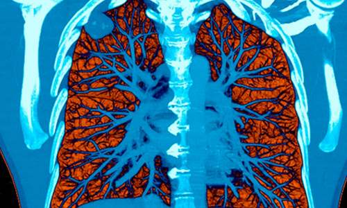 A colored CT scan showing a tumor in the lung.
