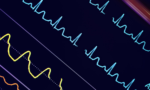 Image of a heart monitor