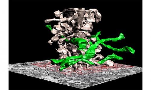 A 3D neurological model of rat's brain.