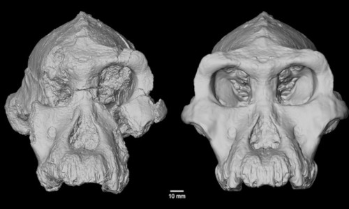 3D reconstruction of craniums