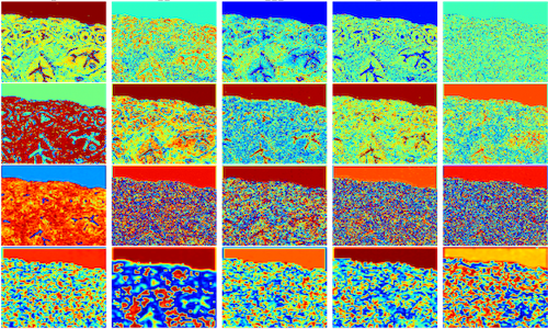 Activation maps of neural network model for digital staining of tumors.