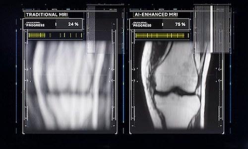 Traditional MRI image at left, AI-enhanced image at right